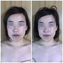 化粧したまま小顔矯正の効果の記事に添付されている画像