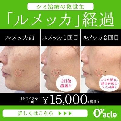 【ルメッカ体験記】ルメッカが東京ではオラクルが安い!15,000円~の記事に添付されている画像