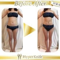 痩身エステ✨の記事に添付されている画像