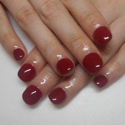 深爪矯正 爪をむしってしまう癖・爪噛み改善/青山ネイルサロンアリュームの記事に添付されている画像