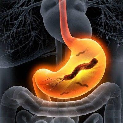 胃潰瘍やら 胃がんやら ピロリ菌は問題か?の記事に添付されている画像