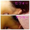 えり足脱毛について(^O^)の画像