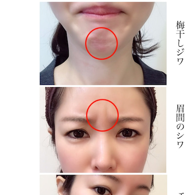ボトックスと美容点滴を受けている理由の記事に添付されている画像