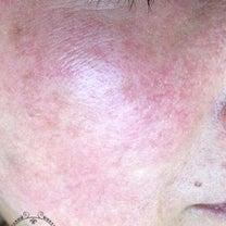 赤く炎症していた肌が、「きれいになったね」と気づかれるほどに変化しました。の記事に添付されている画像