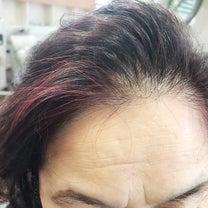 魅せる白髪染の記事に添付されている画像