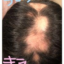 ⑨ネット検索 円形脱毛症の記事に添付されている画像