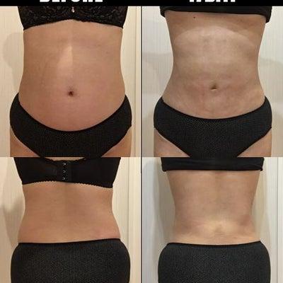 脂肪吸引(腹部・腰):17日目の記事に添付されている画像