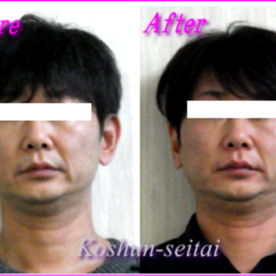 顔の歪み順調に改善!の記事に添付されている画像