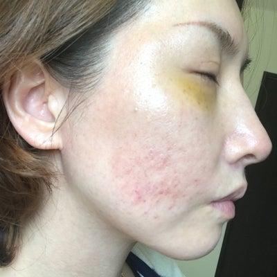陳整形外科でニキビ跡治療7-④の記事に添付されている画像