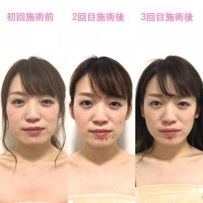 【ビフォーアフター✨】施術4回目 お顔が綺麗に整い、小顔に!の記事に添付されている画像