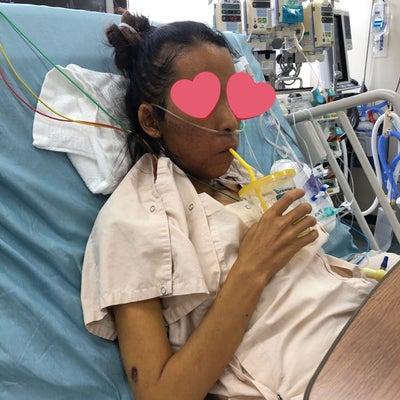 ICUで25歳の誕生日 再生体肝移植22日目の記事に添付されている画像