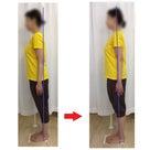 抗がん剤治療後のケアに足からの筋膜ケアをご選択いただきましたの記事より