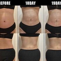 脂肪吸引(腹部・腰):18日目・19日目の記事に添付されている画像