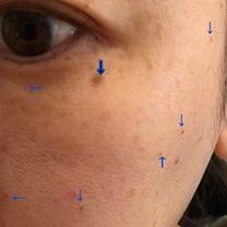 アラフォーの戦い〜美容皮膚科施術内容カウンセリング編の記事に添付されている画像