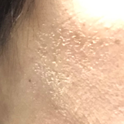 ハーブピーリングから三日目のお肌の記事に添付されている画像