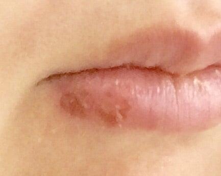 口唇ヘルペス 治し方