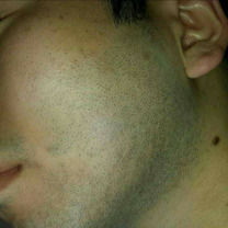青髭が無くなると!肌が綺麗の記事に添付されている画像