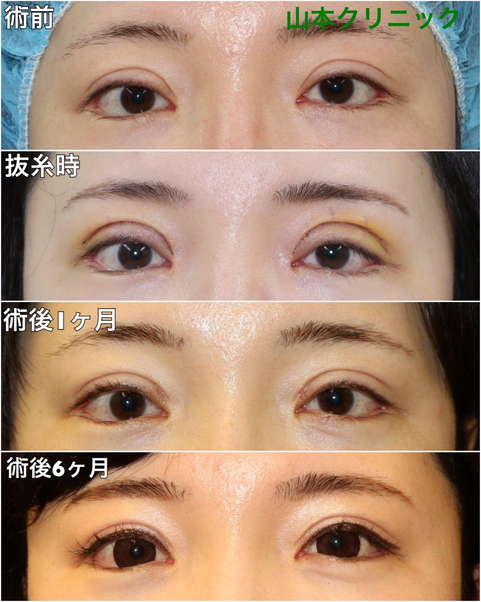 術後の経過【眼瞼下垂修正】