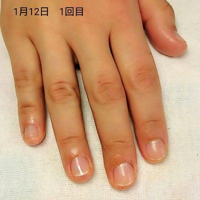 深爪矯正A様 1回目~3回目までの記事に添付されている画像
