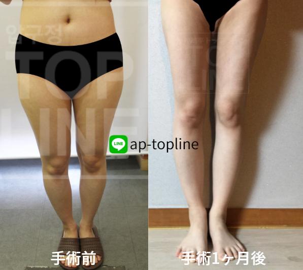 韓国 脂肪 吸引 韓国での脂肪吸引の費用を計算してみました。│ベイザー脂肪吸引ラボ