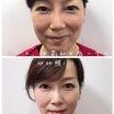 眉下リフト 眉毛の下の皮膚を少し切除して、上まぶたを引き上げて固定します。ポイントは眼輪筋の、、