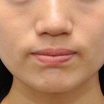 小顔&お鼻へのボトックス+BNLS注射モニター様の記事に添付されている画像