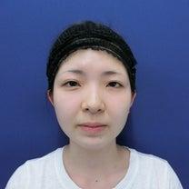 多くの方に見て頂きたい小顔手術症例です◎ LIPO DESIGN by SHUKの記事に添付されている画像