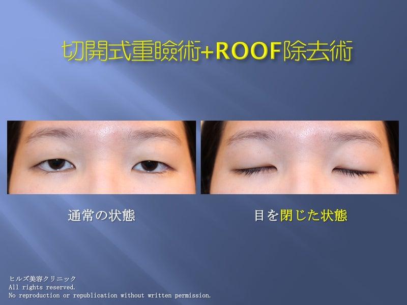 重瞼術(全切開)+ROOF除去 症例