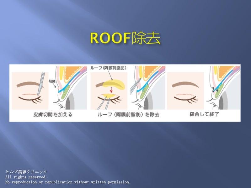 重瞼術(全切開)+ROOF除去 手術イラスト