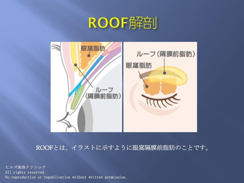 上眼瞼解剖 ROOFの位置 イラスト