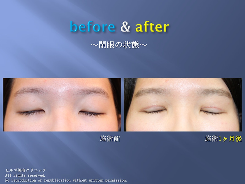 重瞼術(全切開)+ROOF除去 症例(閉眼)