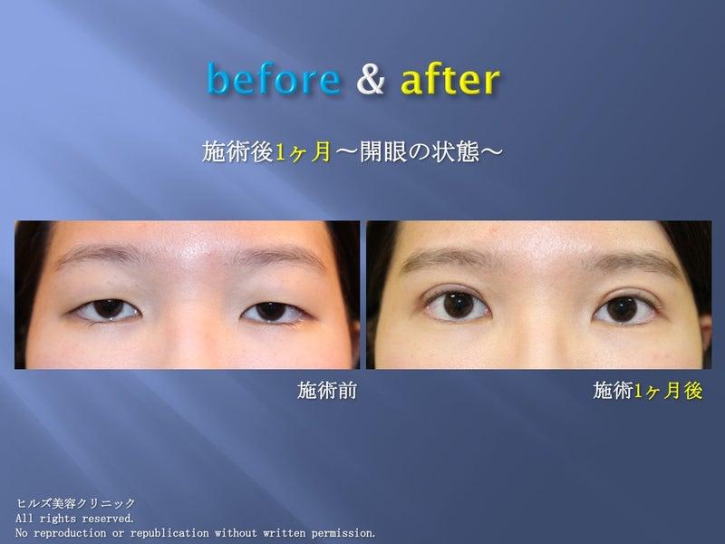 重瞼術(全切開)+ROOF除去 症例(開眼)