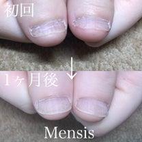 深爪改善のお手伝いをします♪Mensis♡    1026の記事に添付されている画像