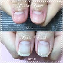 「別人の爪みたい!」爪の悩みが解消されていく喜び♡の記事に添付されている画像