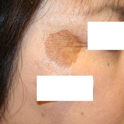 YAGレーザーであっという間にシミ治療!の記事に添付されている画像