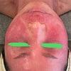 アトピー性皮膚炎の症状で赤みも乾燥もひどくなり・・こんなに短期間でここまで回復するなんて!!の画像