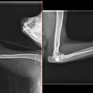 肘関節脱臼の記事より