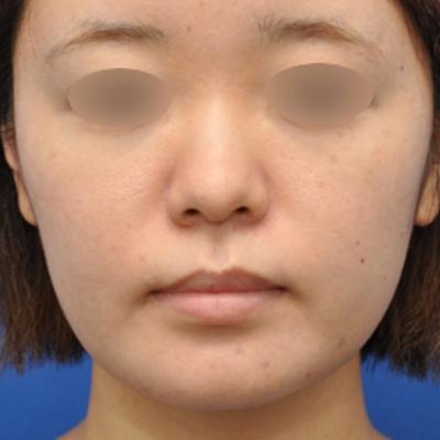 小顔&鼻筋+あご先クッキリ注射治療モニター様の記事に添付されている画像