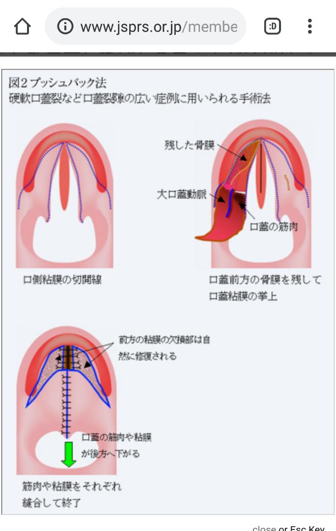 下 口蓋 裂 粘膜