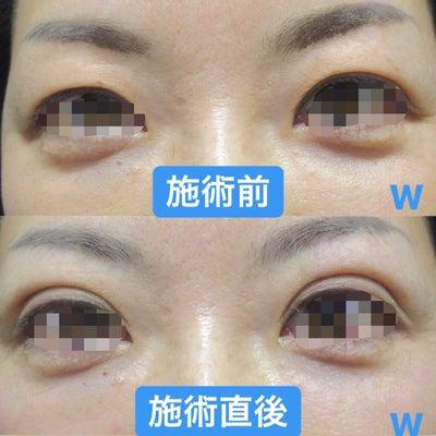人気の手術をご紹介♡~大阪・心斎橋・WCLINIC~の記事に添付されている画像