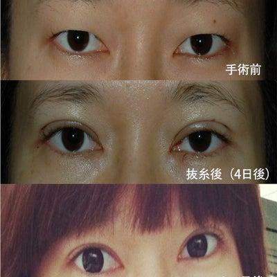 目元パッチリ!部分切開術【Dr.パク・ジェウ】の記事に添付されている画像