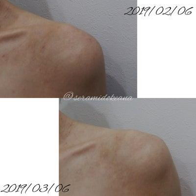 オルビス「ディフェンセラ」1か月飲み続けた変化&毛穴写真の記事に添付されている画像