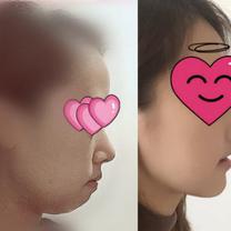 日本人女性の★三顎手術(両顎手術+セットバック)体験記★をご紹介♬の記事に添付されている画像