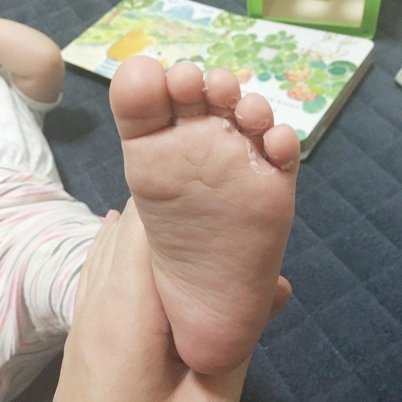 足 裏 皮 剥ける
