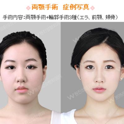 ウォンジン整形外科の両顎・輪郭手術★の記事に添付されている画像