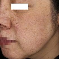 シミ・シワ お肌のアンチエイジングにピコプレミアムの記事に添付されている画像