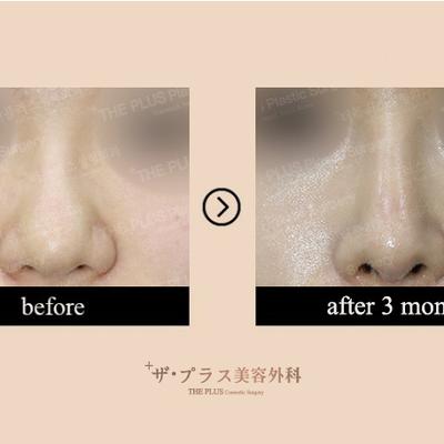 ザ・プラス美容外科の鼻尖形成+症例写真★の記事に添付されている画像