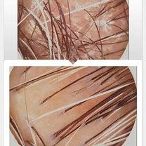 頭皮が生まれ変わったの記事に添付されている画像