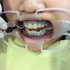 歯科用ホワイトニングの画像