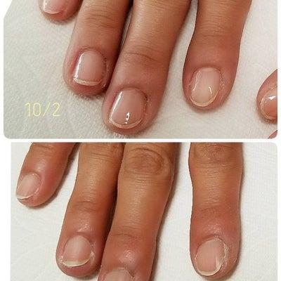 爪の形が嫌い!!からキレイでhappyへ変身しましょう♡♡の記事に添付されている画像